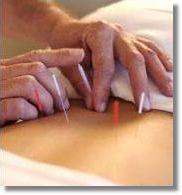 acupuntura1.jpg